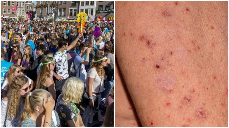 تضاعف حالات الإصابة بمرض الجَرَب الجلدي في هولندا وخصوصاً بين الطلاب