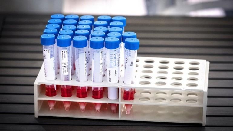 شركة هولندية باعت مليون ونصف اختبار غير موثوق لفيروس كورونا