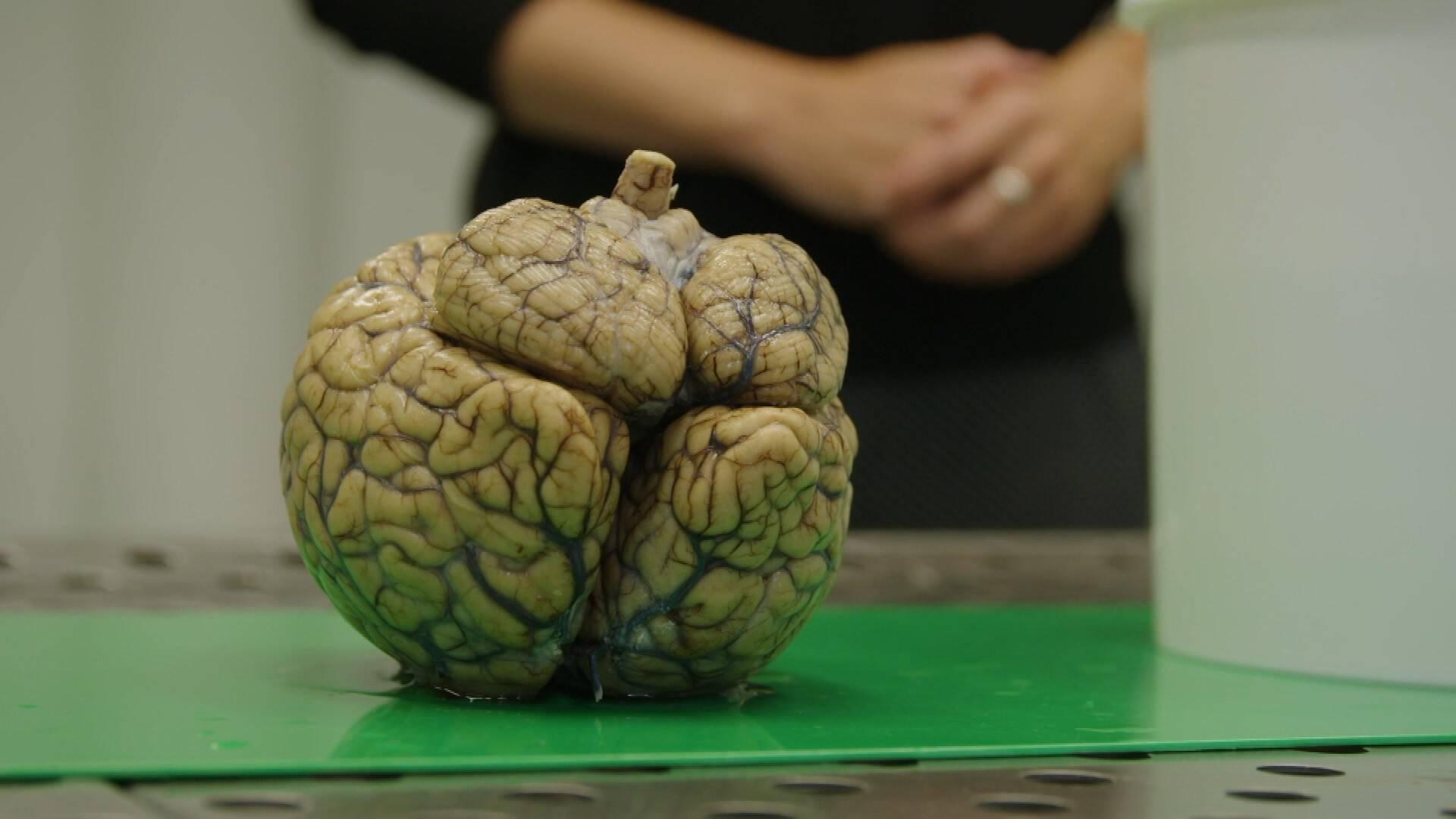 باحثون: كورونا يؤدي لتلف في الدماغ نتيجة الاستجابة المناعية المبالغ فيها